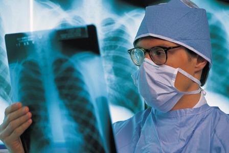 radiologo che legge lastra
